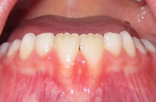 Bumps on Tongue - Diseases Pictures