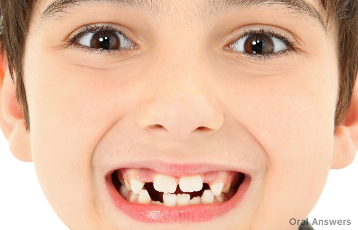 Bumps front Teeth Mamelons