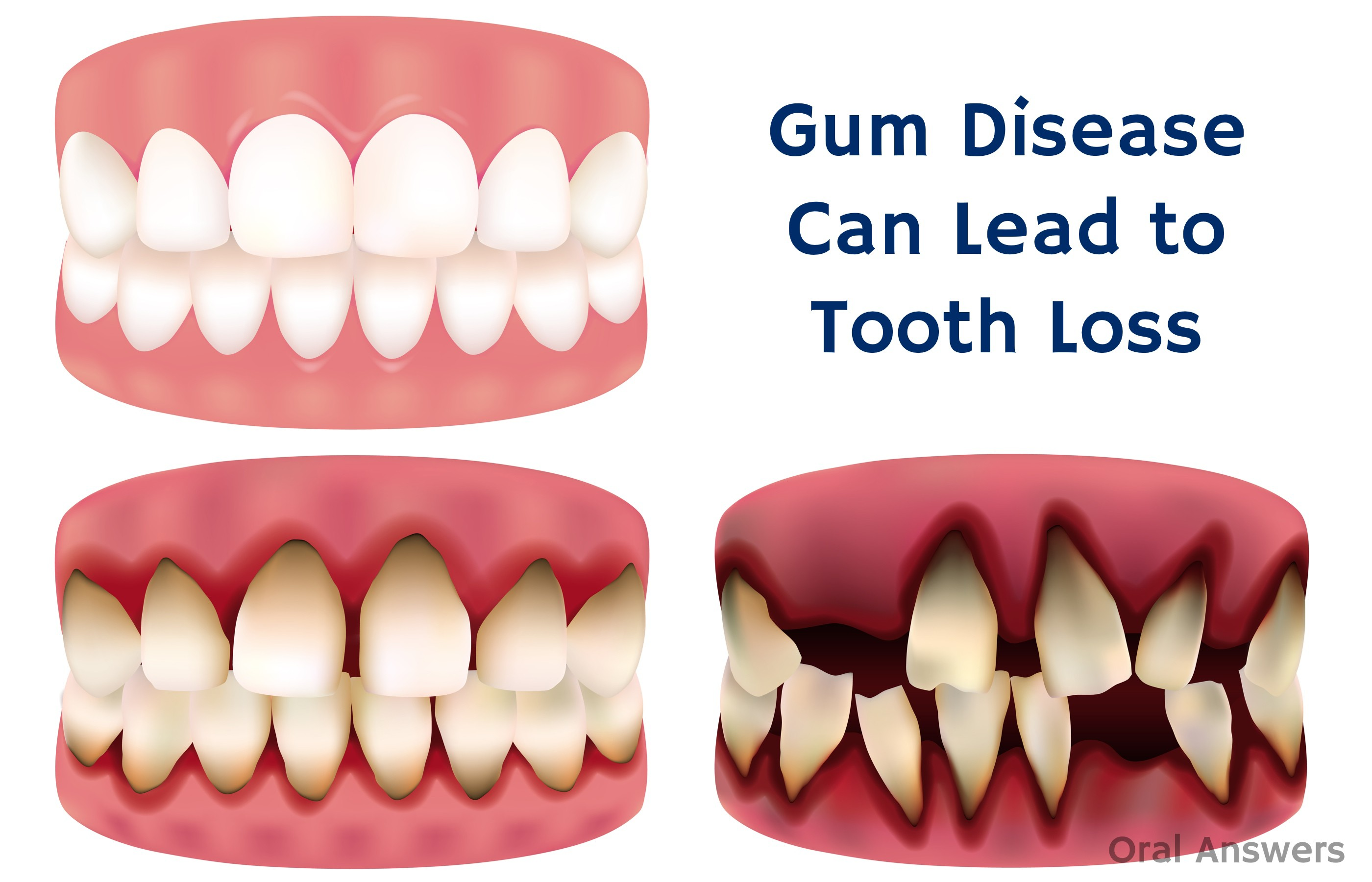 Periodontal Disease Not Cavities Is The Leading Cause Of Tooth