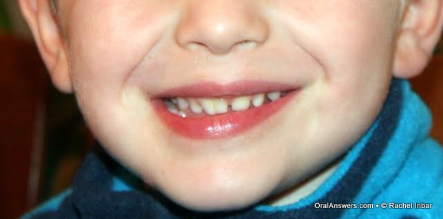 double teeth � gemination and fusion oral answers