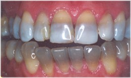 adults Discolored teeth in