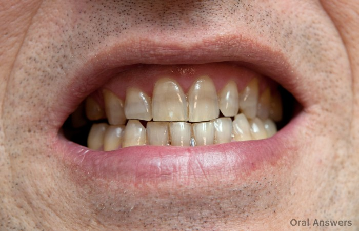 Tetracycline Teeth Staining Cause and Treatments