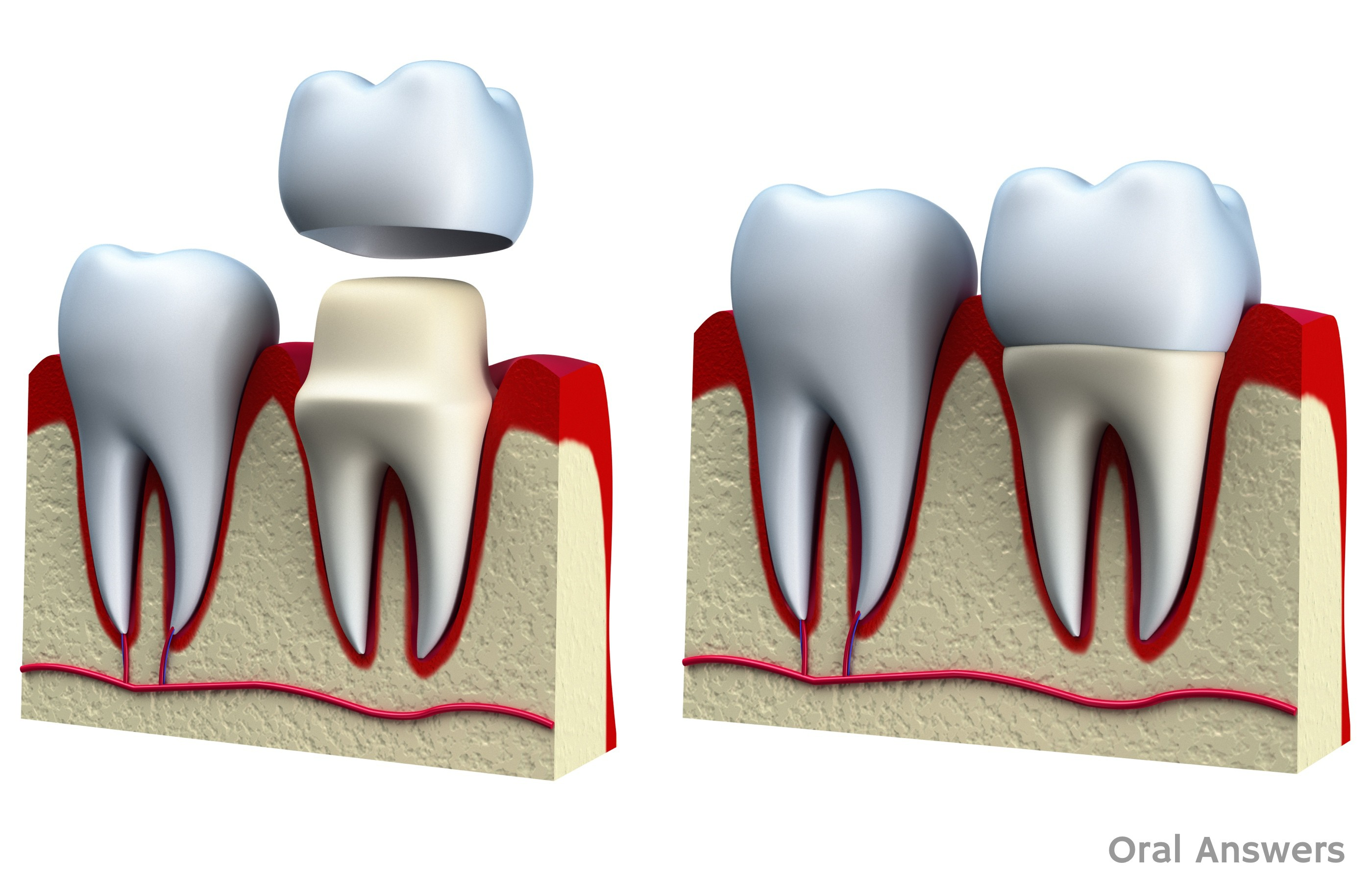Dental Crown Procedure  What is a Dental Crown   Cap   b052e509989