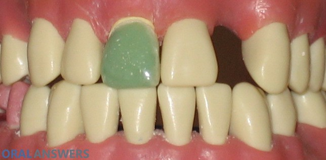 Cavities oral answers tooth with a temporary crown solutioingenieria Image collections