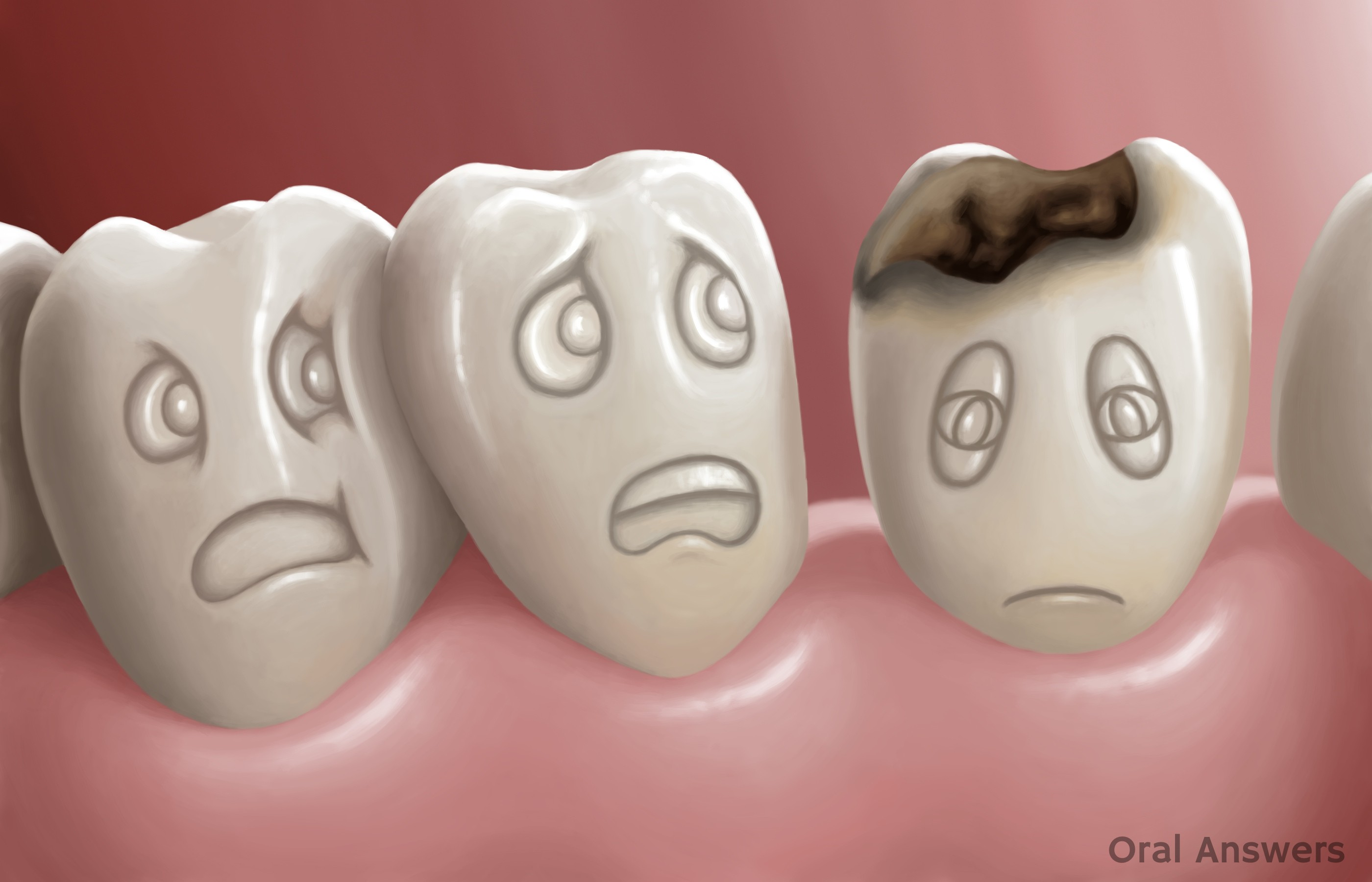 Tooth Decay A Serious Disease Oral Answers