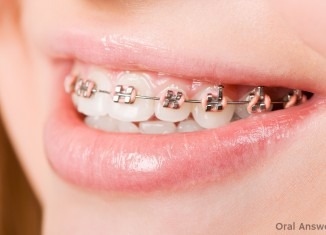 Why Braces Have Two Colored Bands Around Them