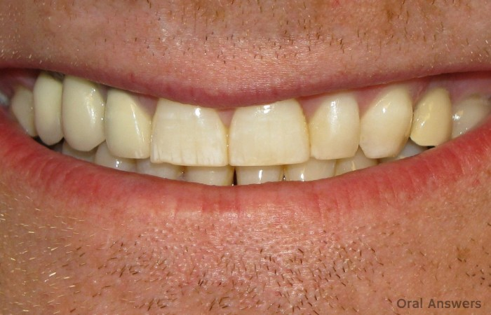 Dental Fluorosis Stains Teeth Chalky White