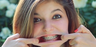Is a Labial Frenectomy Necessary After Braces?