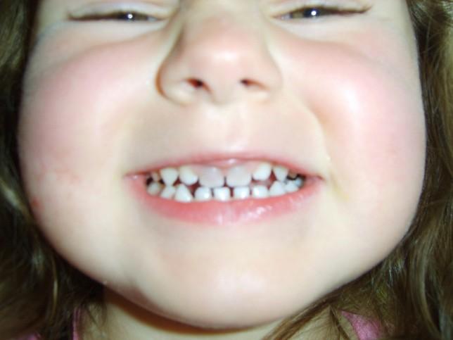 Teeth Turning Grey