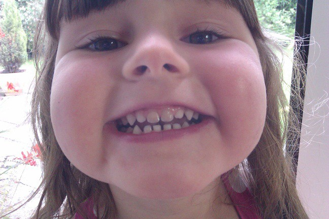 Dark Tooth: Why Your Child Has a Discolored Tooth | Oral Answers