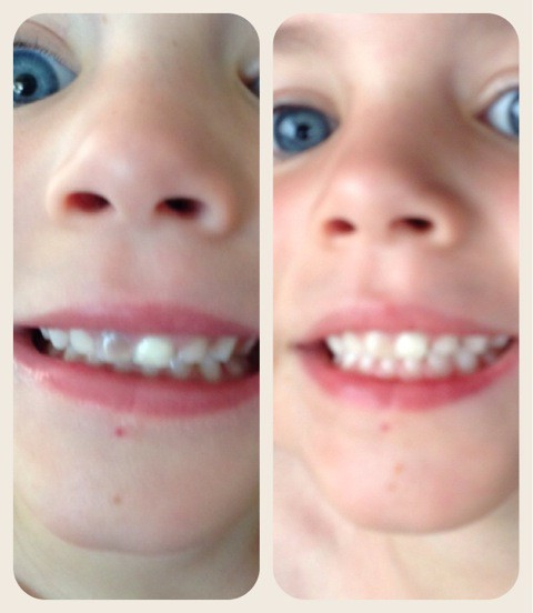 Dark Tooth Why Your Child Has A Discolored Tooth Oral