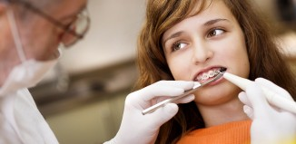 Can General Dentists Do Braces?