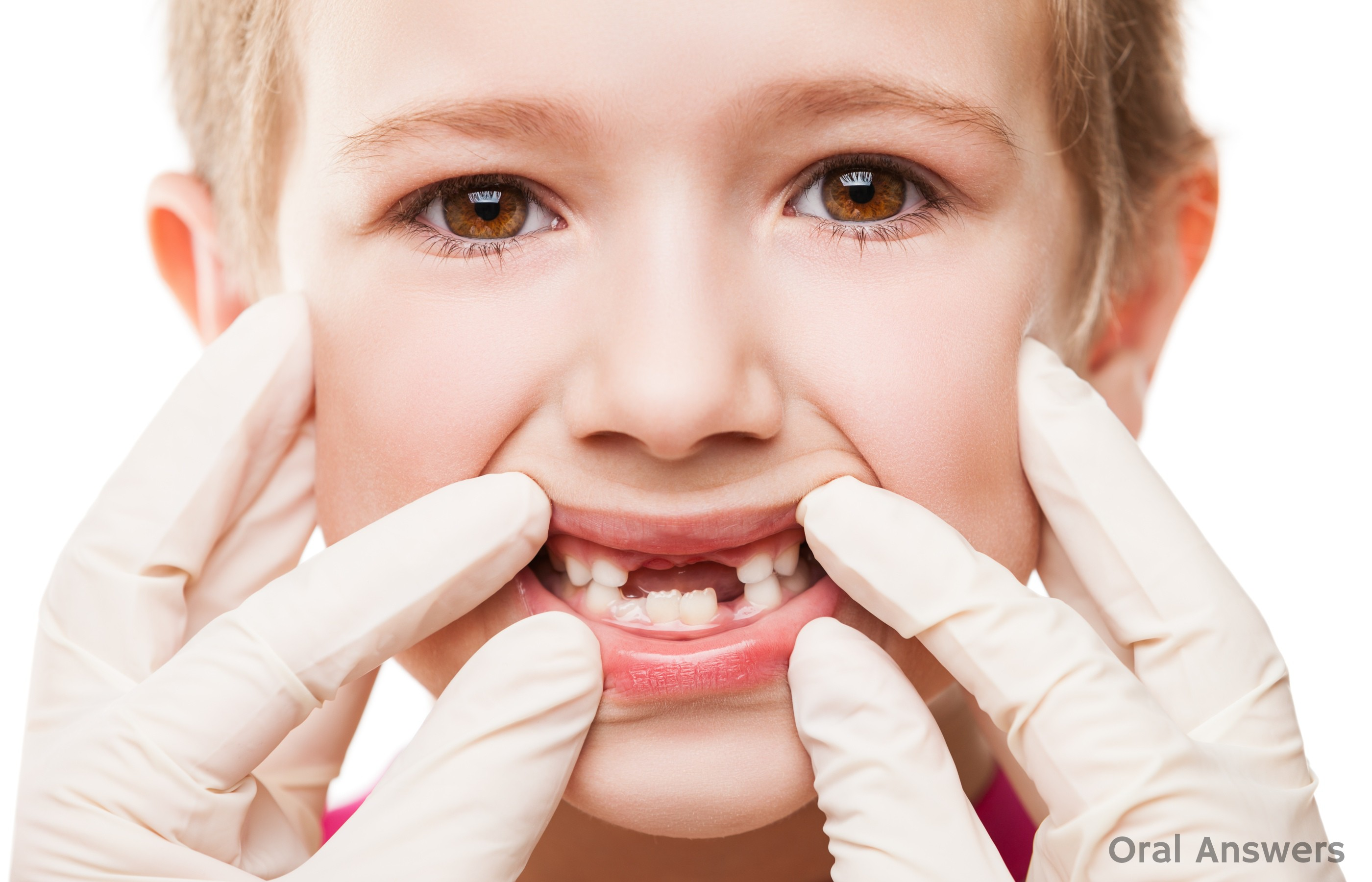 What does a cavity look like in a toddler 10