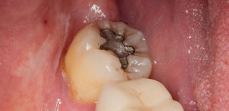Contents of Silver Amalgam Fillings