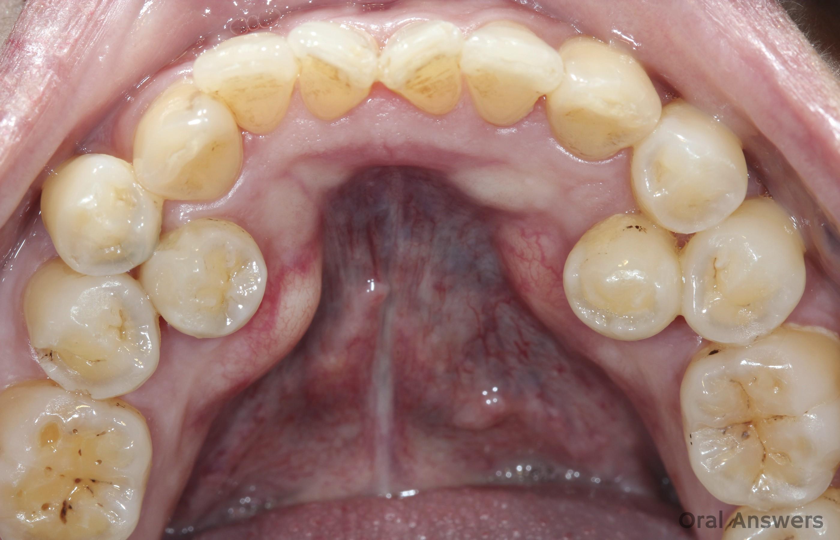 Supernumerary Teeth Premolars