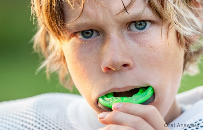 Types of Sports Mouthguards