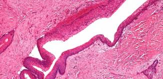 Keratocystic Odontogenic Tumor