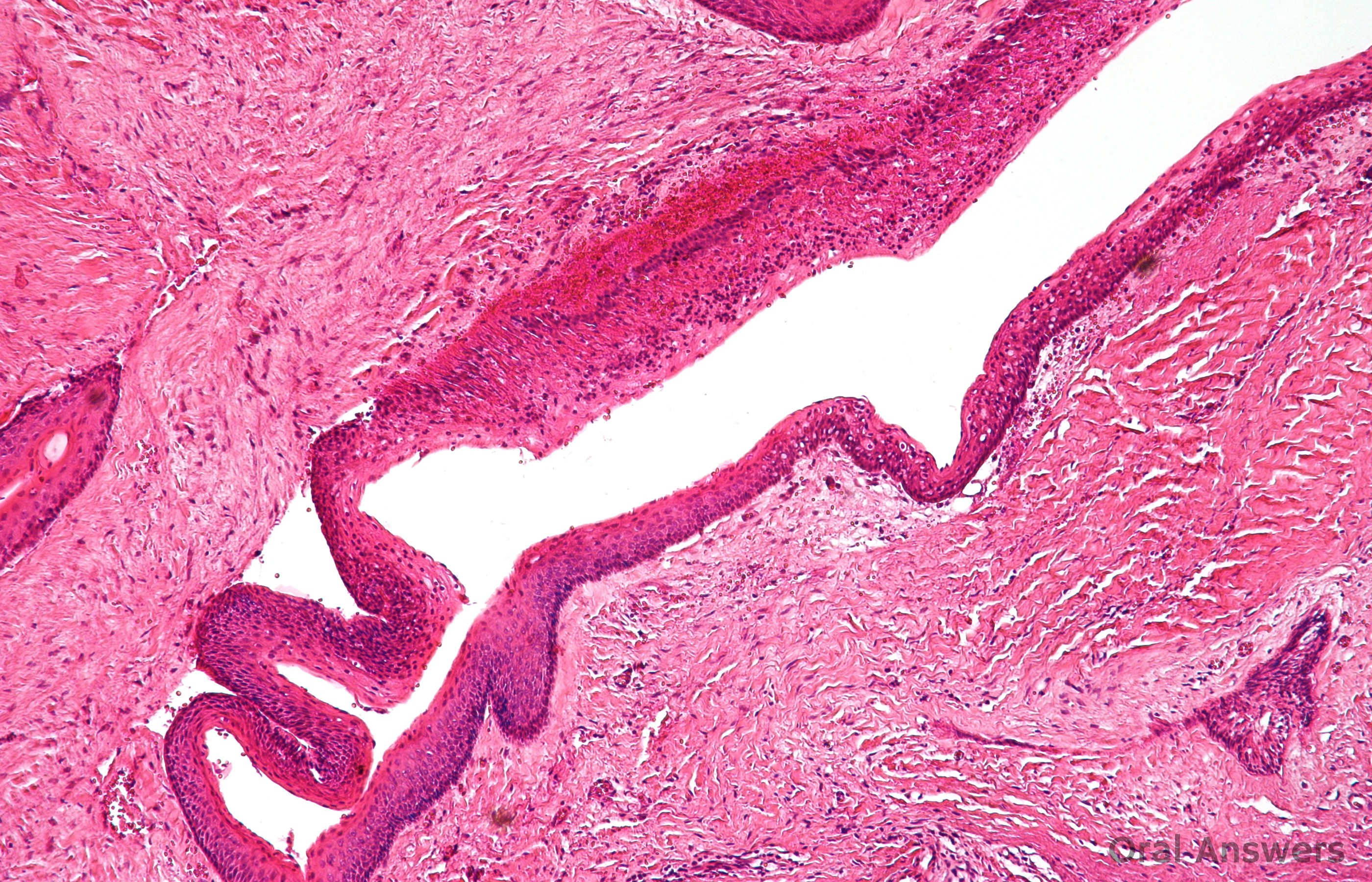 Picture of Epidermal Inclusion Cyst (EIC) on MedicineNet