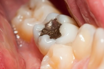 Kết quả hình ảnh cho After a tooth decay, cannot eat hot and cold, what to teeth