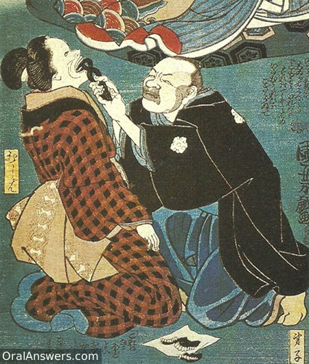 Japanese Dentist Kneeling to Extract Tooth - Dental History