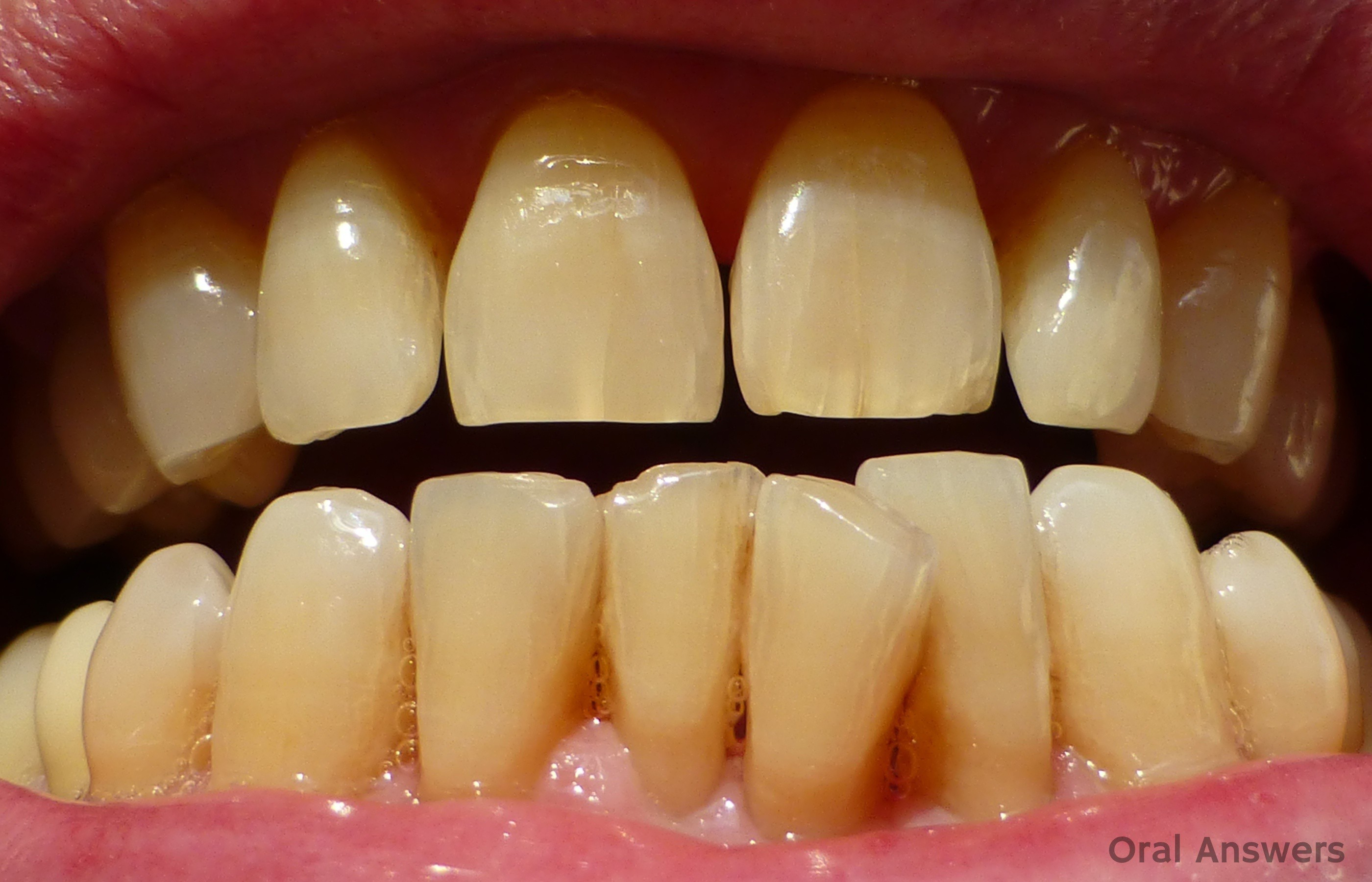 cracked front tooth enamel