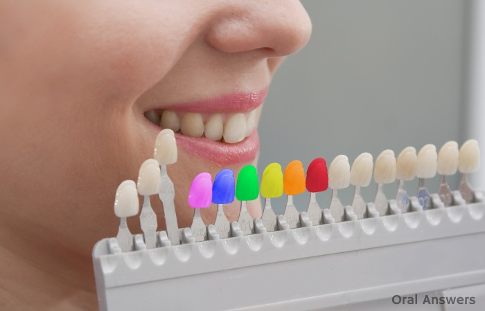 Colored Dental Tooth Fillings