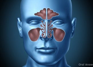 Sinus Infection Can Cause Tooth Pain