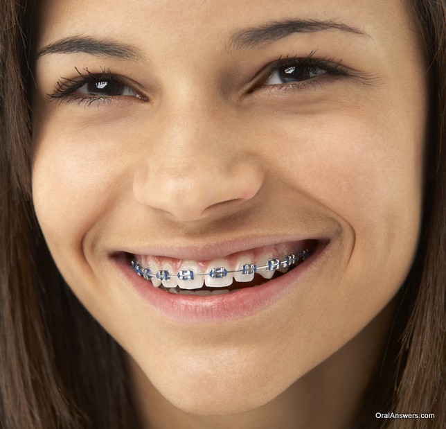 Orthodontics Amp Braces Oral Answers