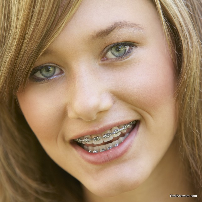 Girls with braces