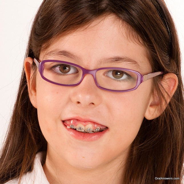 Really. Cute teens with braces glasses