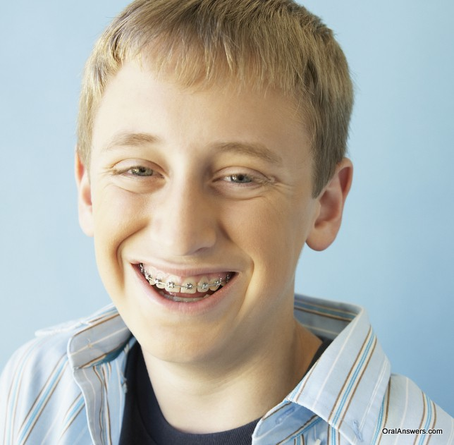 60 photos of teenagers with braces oral answers