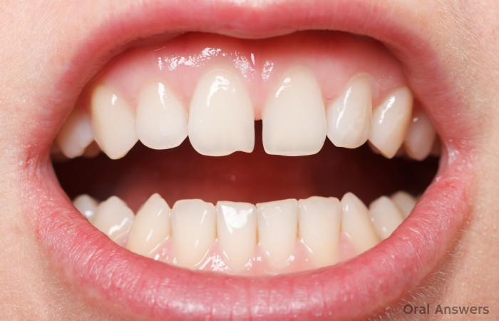 Frenectomy in Children Necessary?