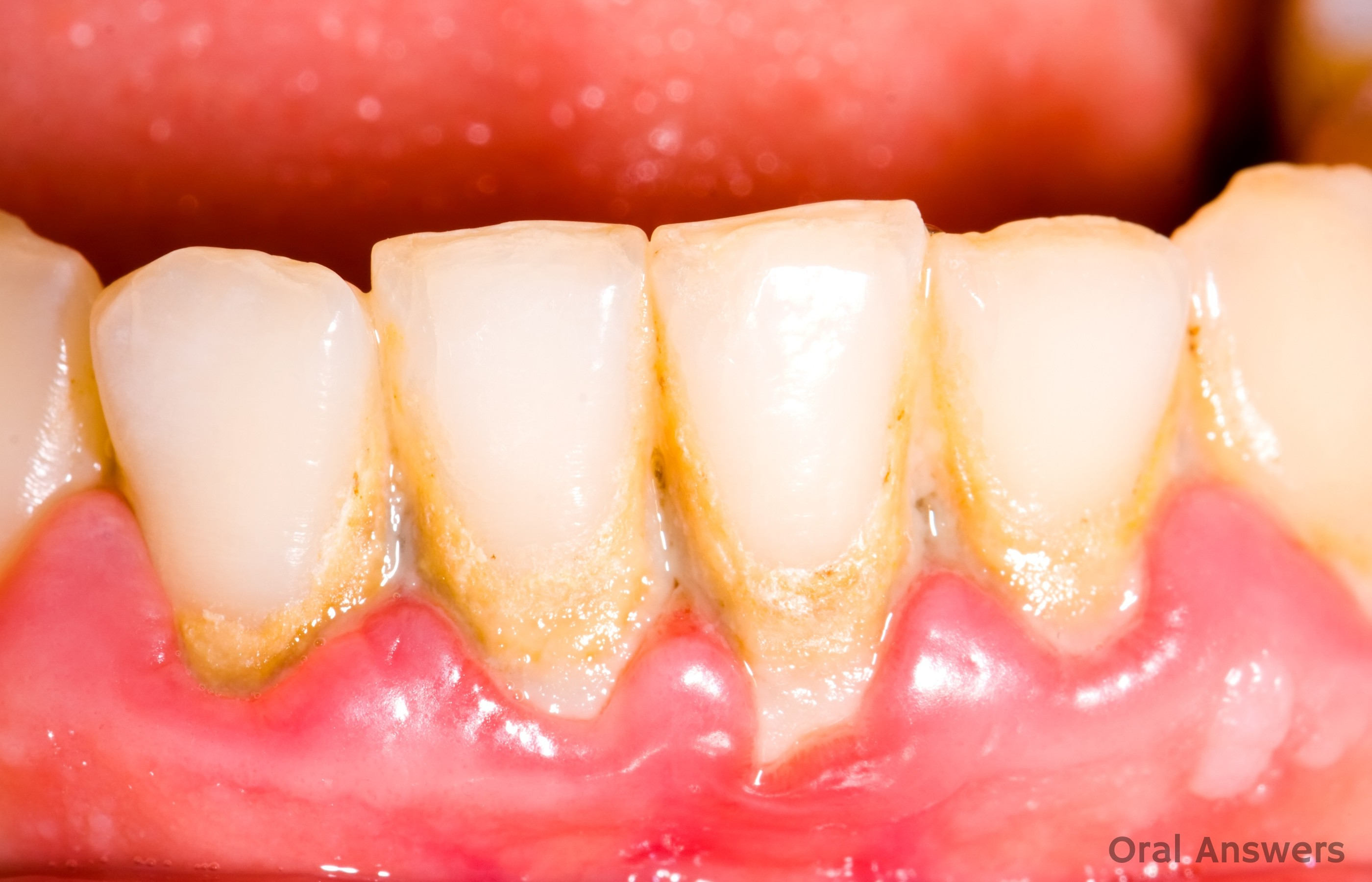 Seven Reasons Your Gums Are Enlarged Oral Answers
