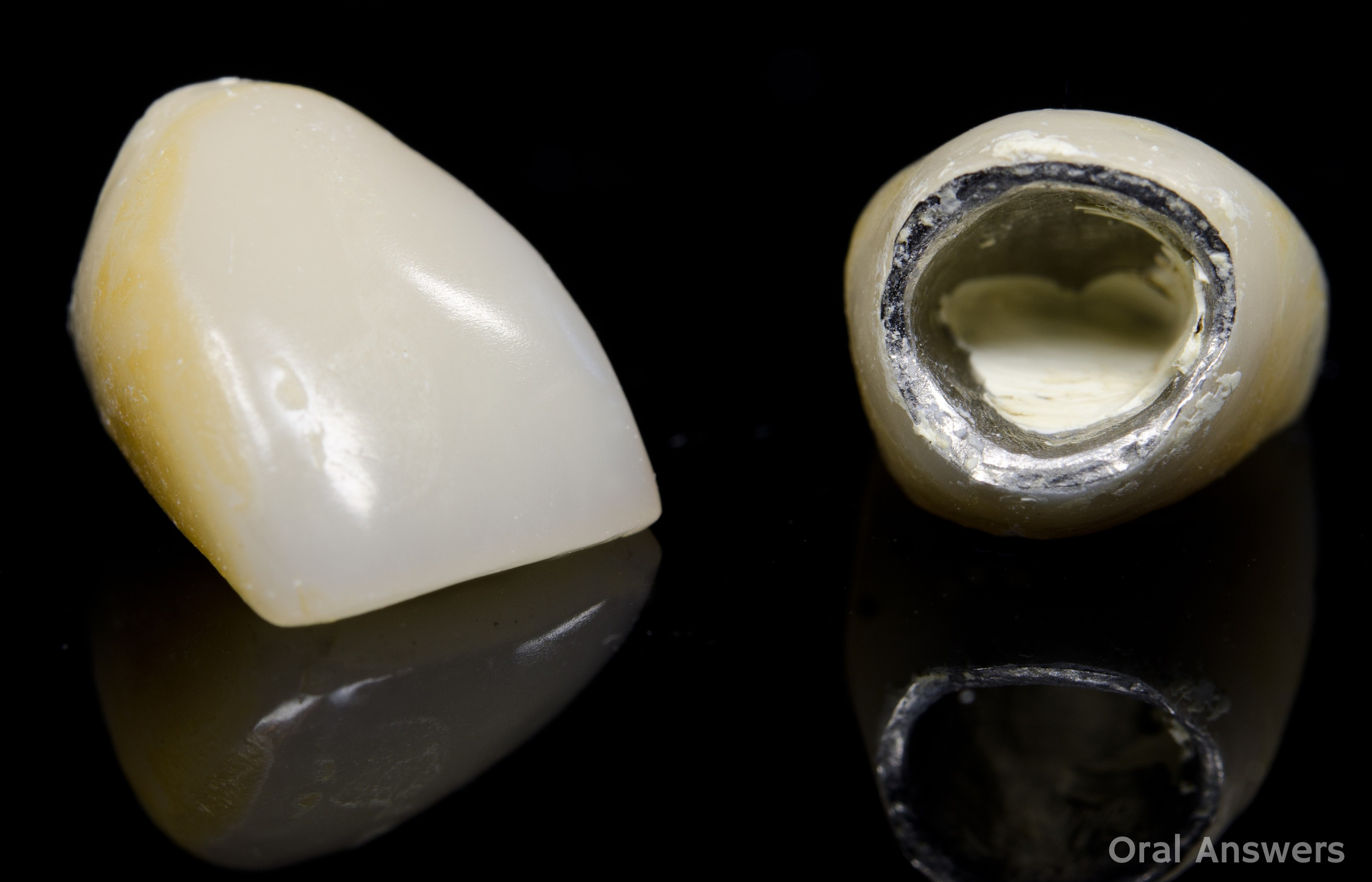aa1876b74b0 What You Should Do When a Crown Falls Off of Your Tooth