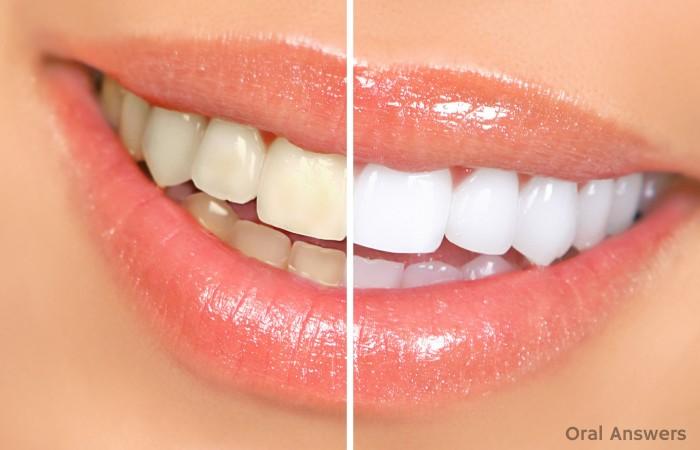 Teeth Whitening Defective Gel