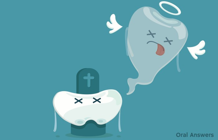 Gum Disease Leads to Tooth Loss