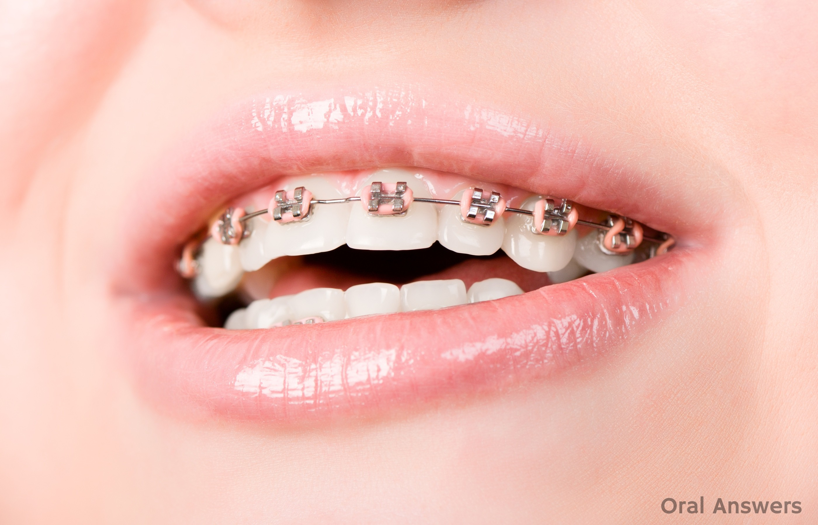 Why You Have To Have Rubber Bands On Each Tooth With Braces Oral Answers