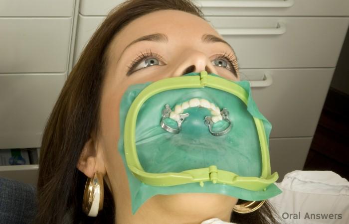 Rubber Dental Dam Advantages