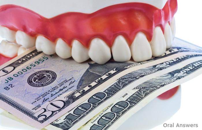 OA Links: Dental Work Expensive