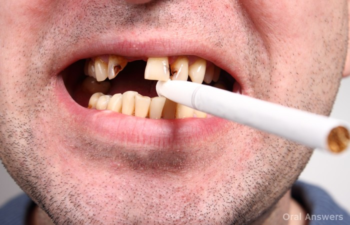 Smokers Have Less Teeth Than Non-Smokers