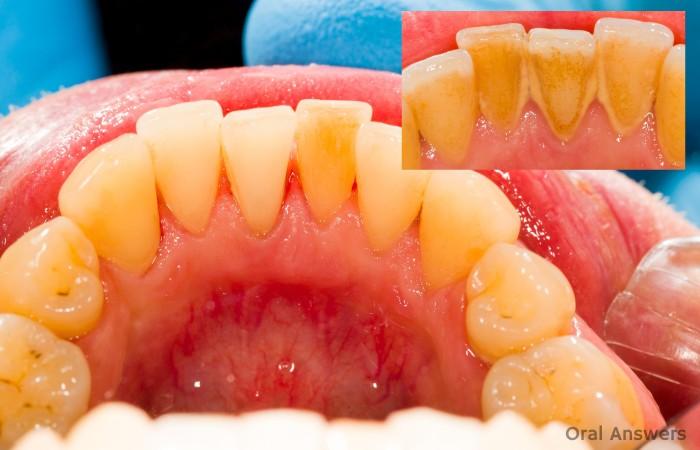 Dental Tartar and Calculus