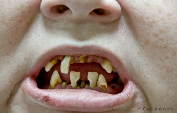 Meth Mouth Destroys Teeth