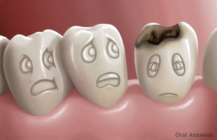 Tooth Decay Serious Disease