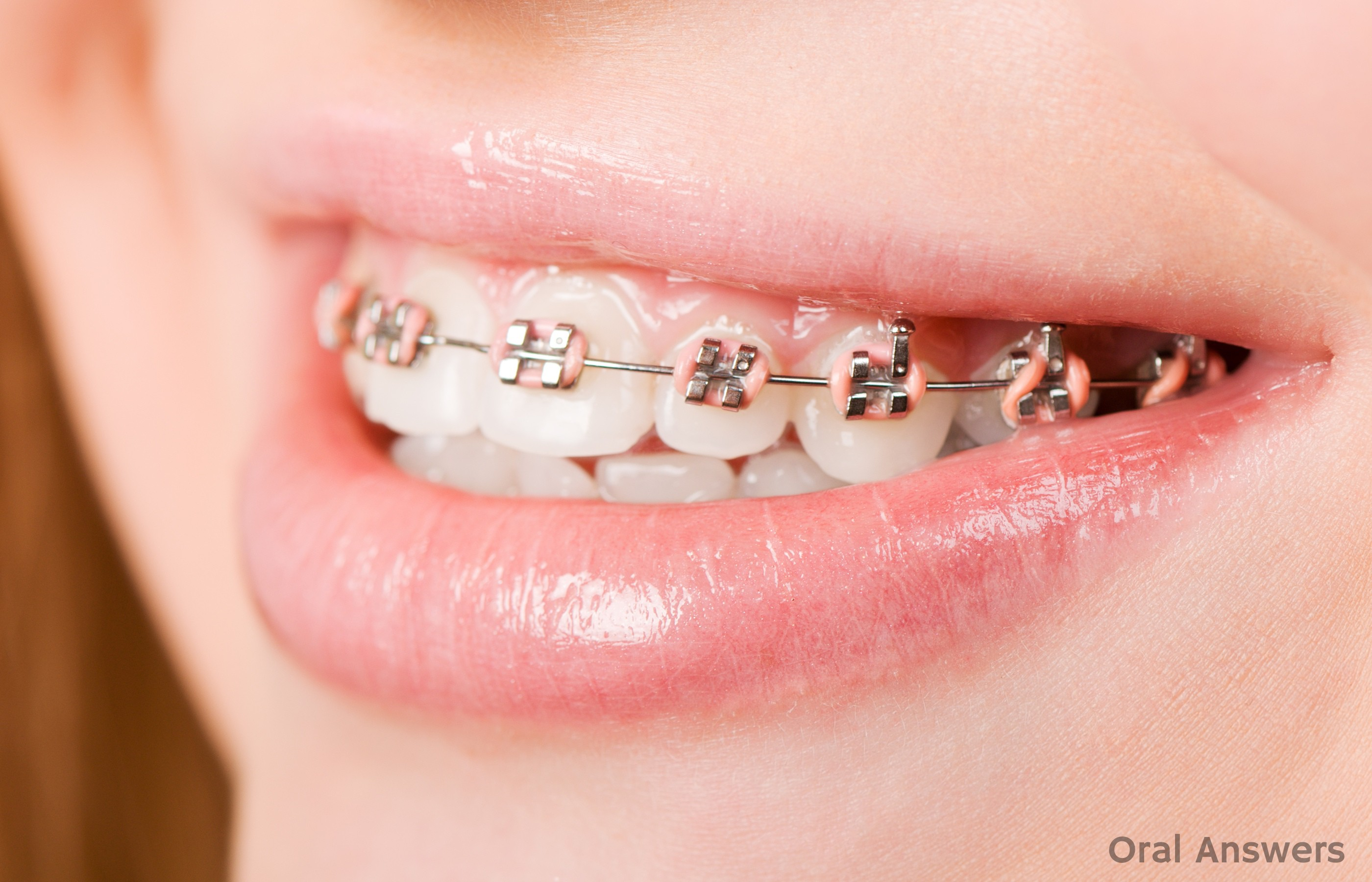 Why Braces Might Have Two Colored Rubber Bands Around Them Oral
