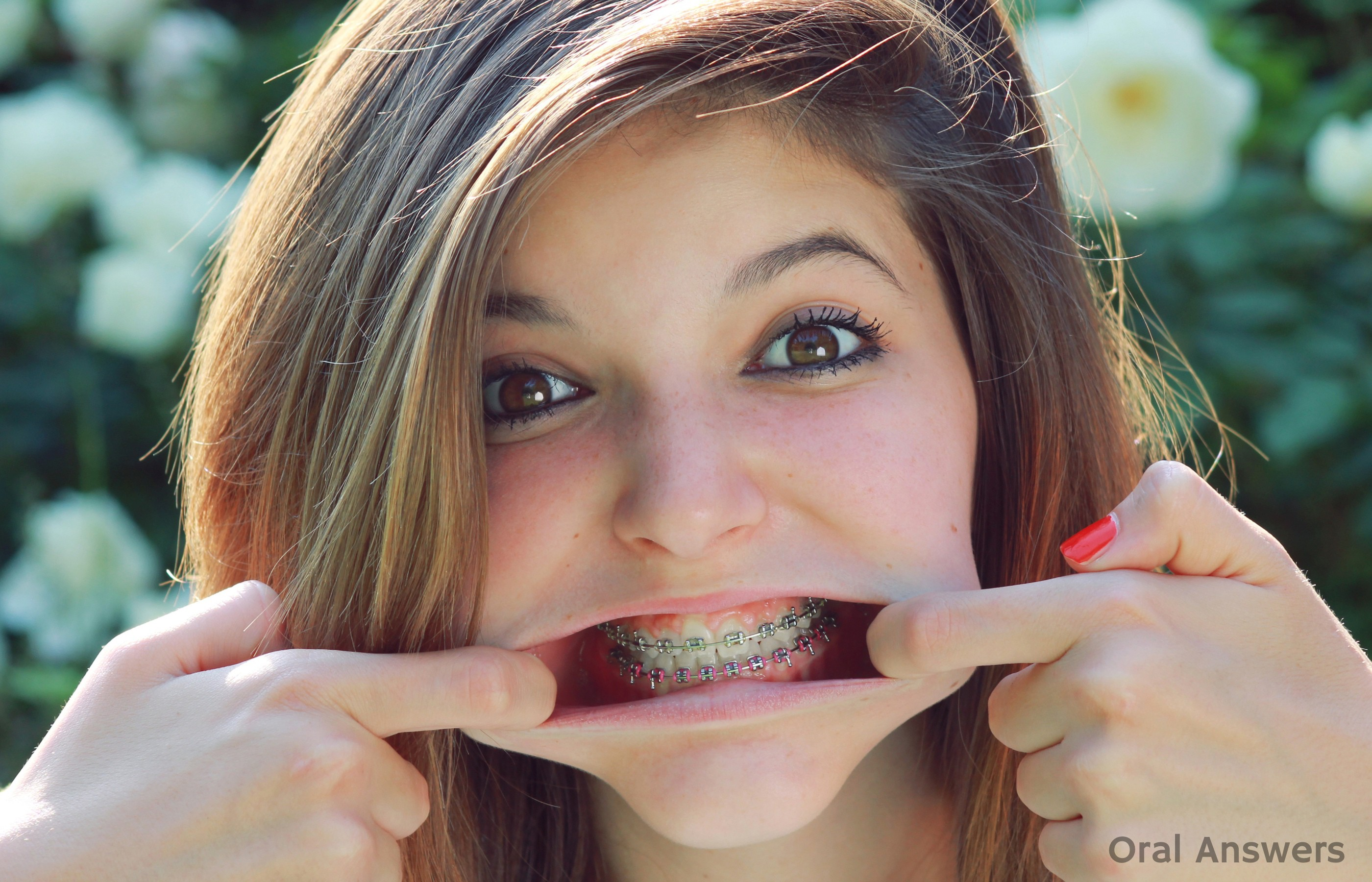 Is a Labial Frenectomy Necessary After Braces? | Oral Answers