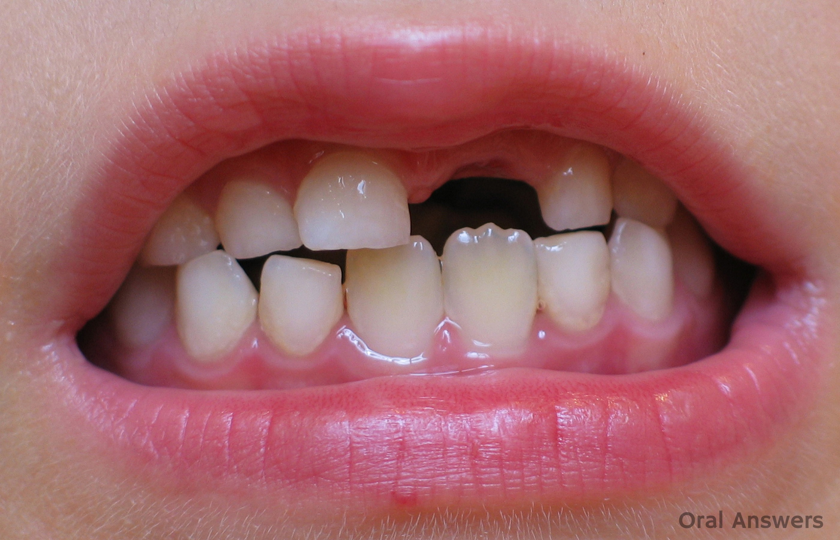Teeth In Adult Mouth 67