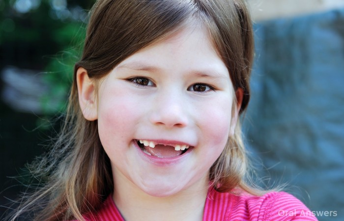 Age that a Child Needs a Frenectomy