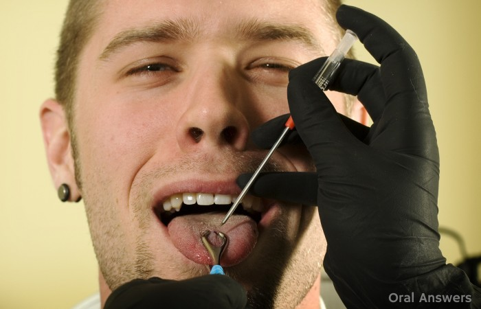 Tongue Piercing with Needle