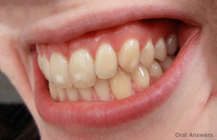 Dental Fluorosis Treatment How Dental Fluorosis Is