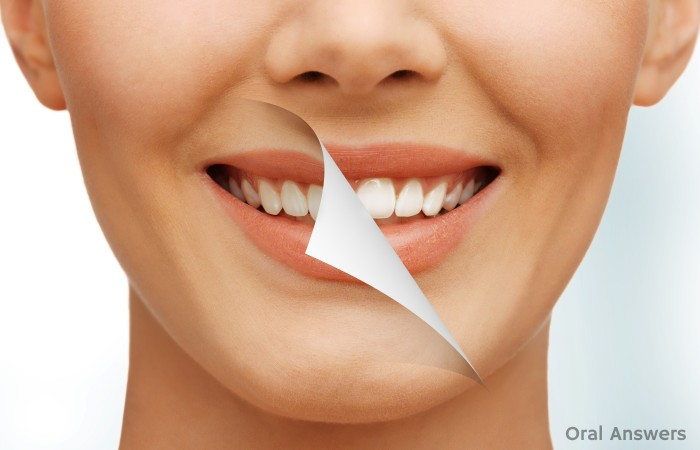 Five Ways to Get Better Teeth